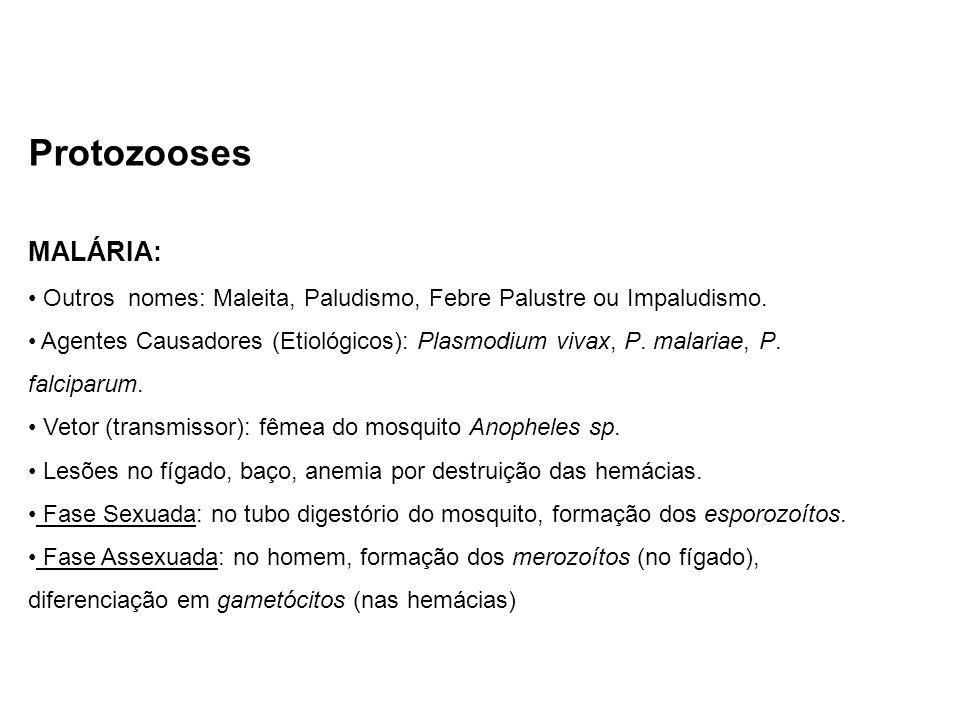 Protozooses MALÁRIA: Outros nomes: Maleita, Paludismo, Febre Palustre ou Impaludismo.