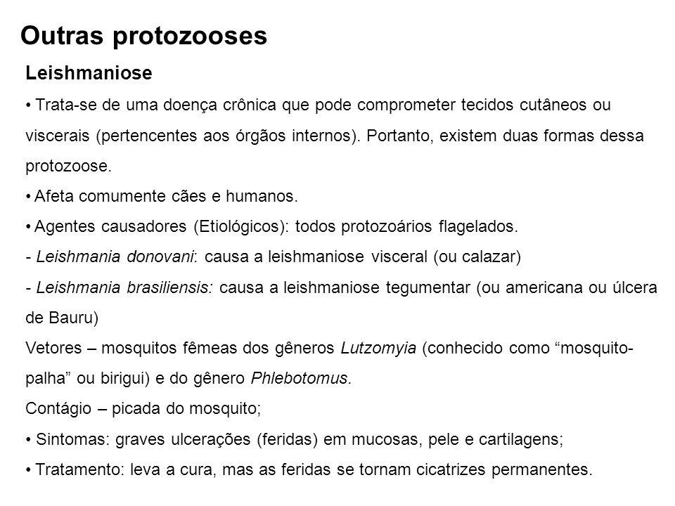 Outras protozooses Leishmaniose
