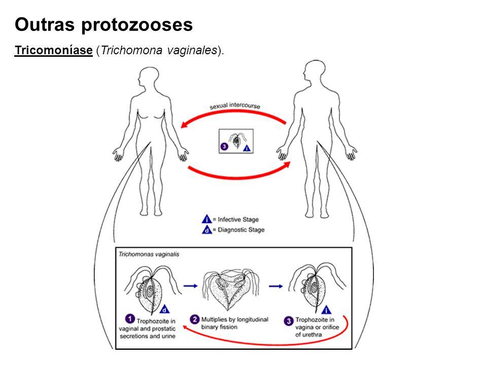 Outras protozooses Tricomoníase (Trichomona vaginales).