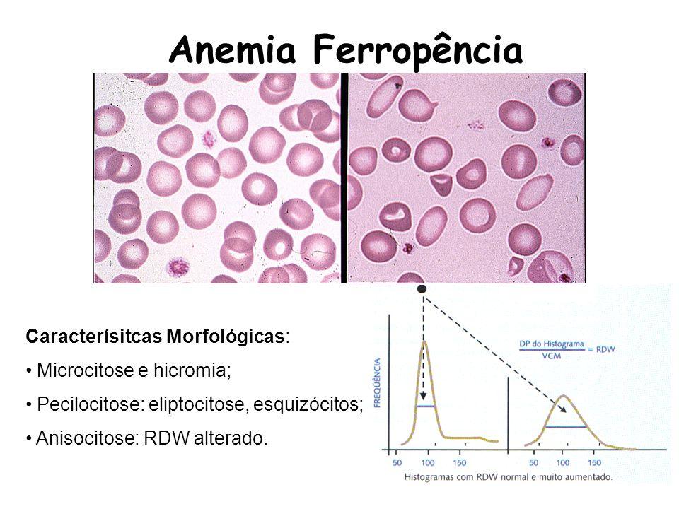 Anemia Ferropência Caracterísitcas Morfológicas: