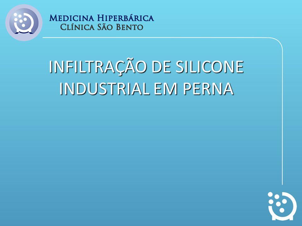 INFILTRAÇÃO DE SILICONE INDUSTRIAL EM PERNA
