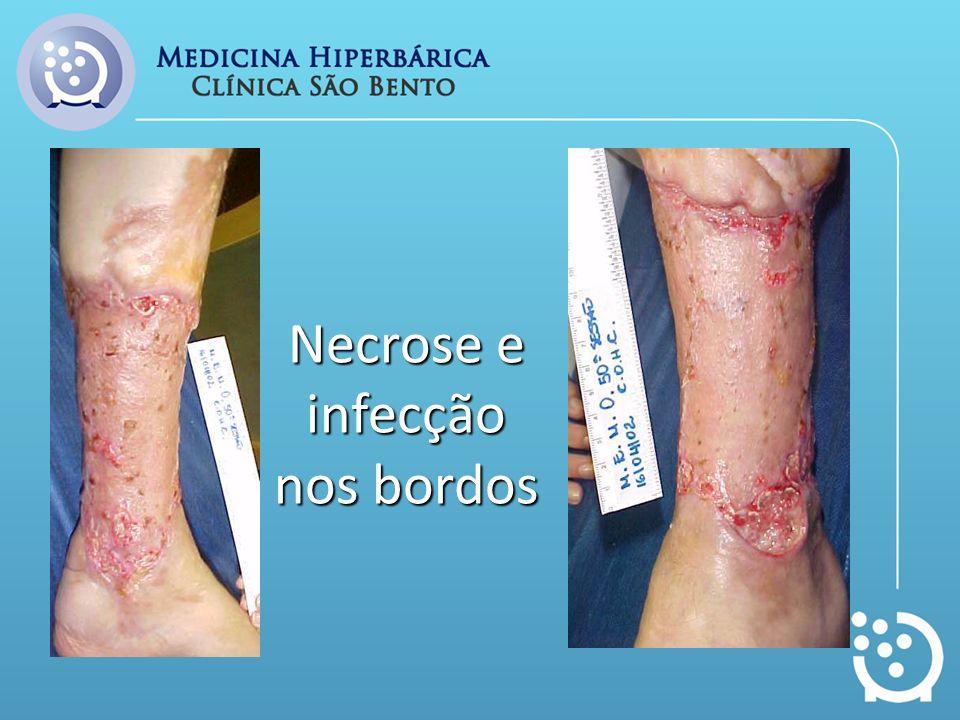 Necrose e infecção nos bordos