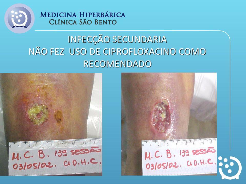INFECÇÃO SECUNDARIA NÃO FEZ USO DE CIPROFLOXACINO COMO RECOMENDADO
