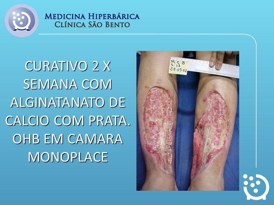 CURATIVO 2 X SEMANA COM ALGINATANATO DE CALCIO COM PRATA