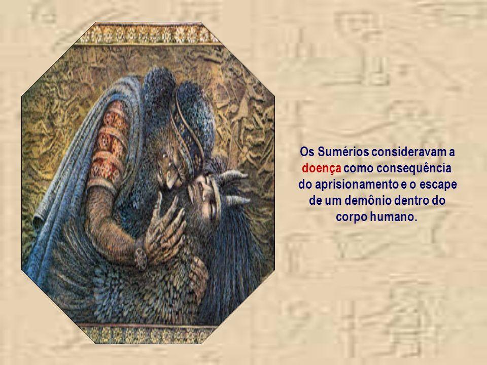Os Sumérios consideravam a doença como consequência