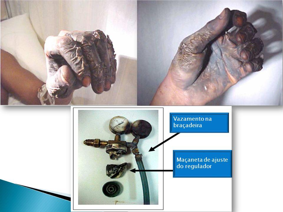 Exemplos da Acidentes Com Oxigênio