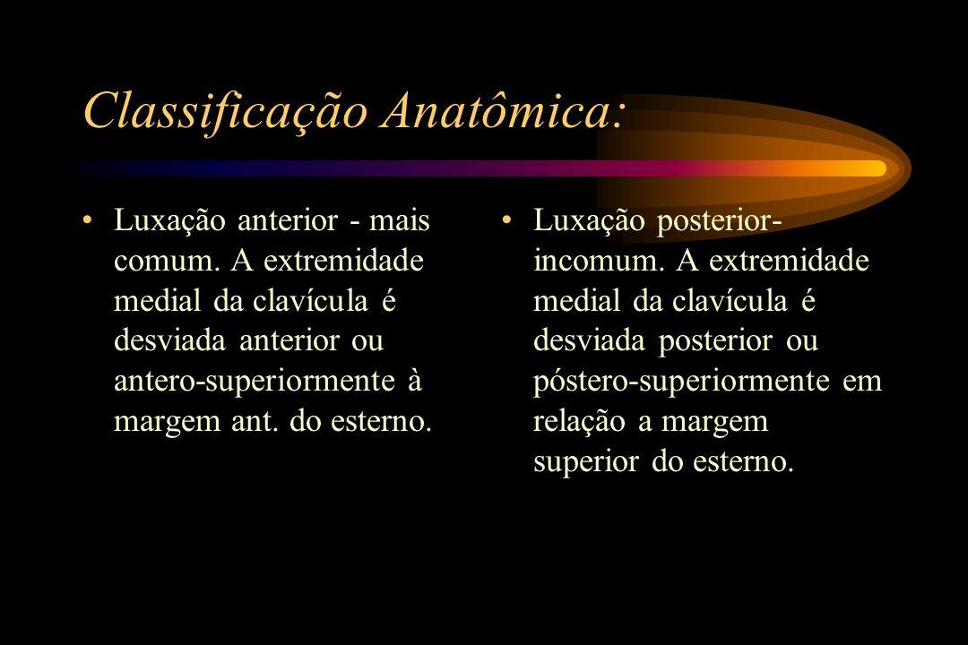 Classificação Anatômica: