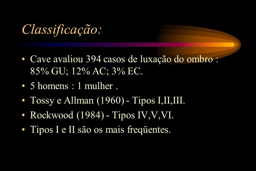 Classificação: Cave avaliou 394 casos de luxação do ombro : 85% GU; 12% AC; 3% EC. 5 homens : 1 mulher .