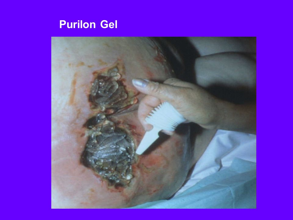 Purilon Gel