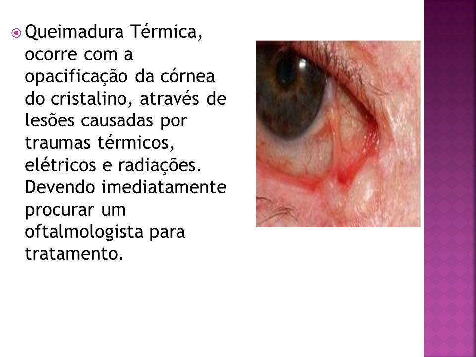 Queimadura Térmica, ocorre com a opacificação da córnea do cristalino, através de lesões causadas por traumas térmicos, elétricos e radiações.