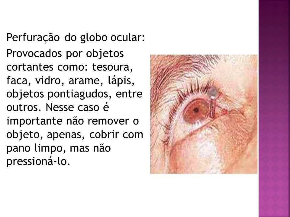 Perfuração do globo ocular: Provocados por objetos cortantes como: tesoura, faca, vidro, arame, lápis, objetos pontiagudos, entre outros.