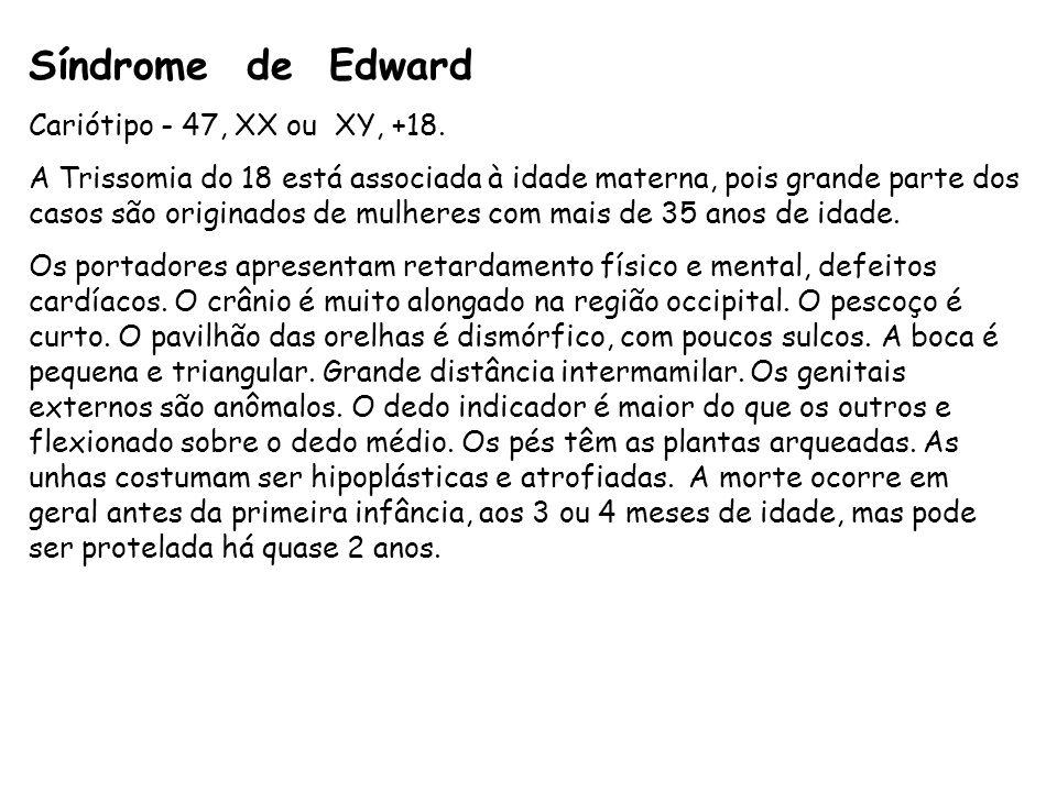 Síndrome de Edward Cariótipo - 47, XX ou XY, +18.