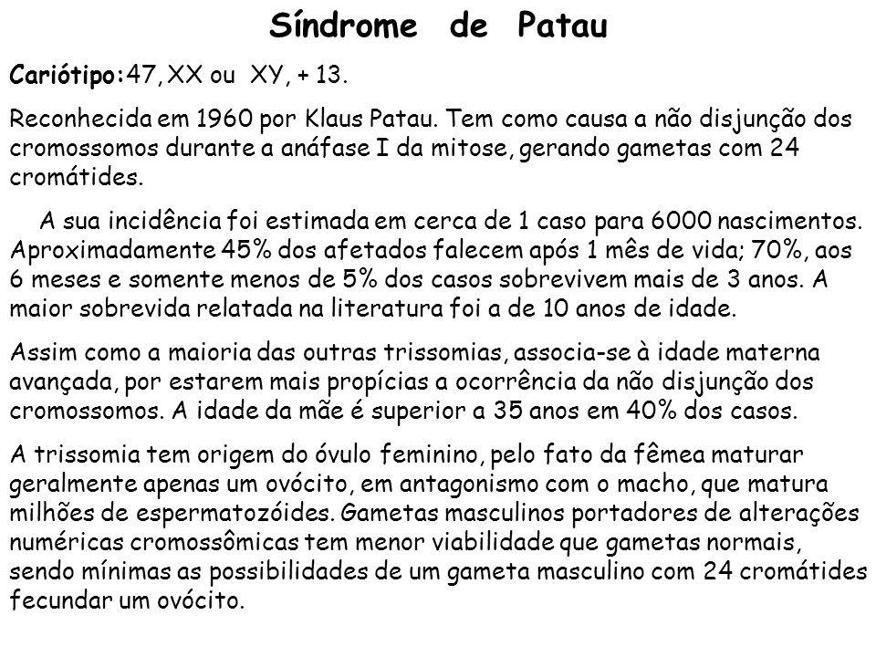 Síndrome de Patau Cariótipo:47, XX ou XY, + 13.