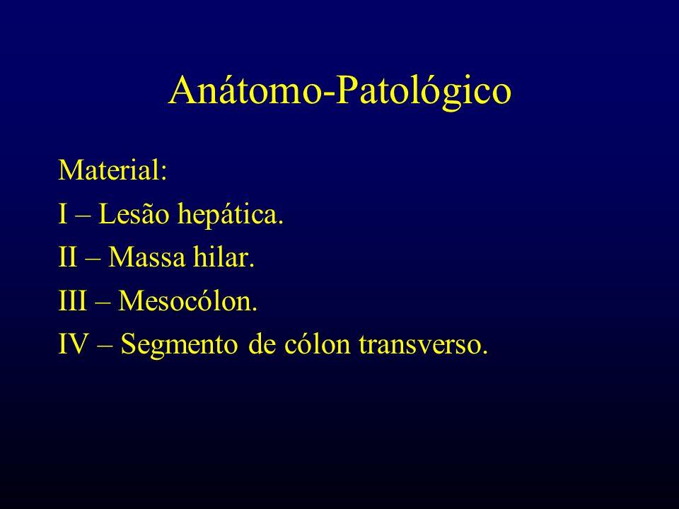 Anátomo-Patológico Material: I – Lesão hepática. II – Massa hilar.