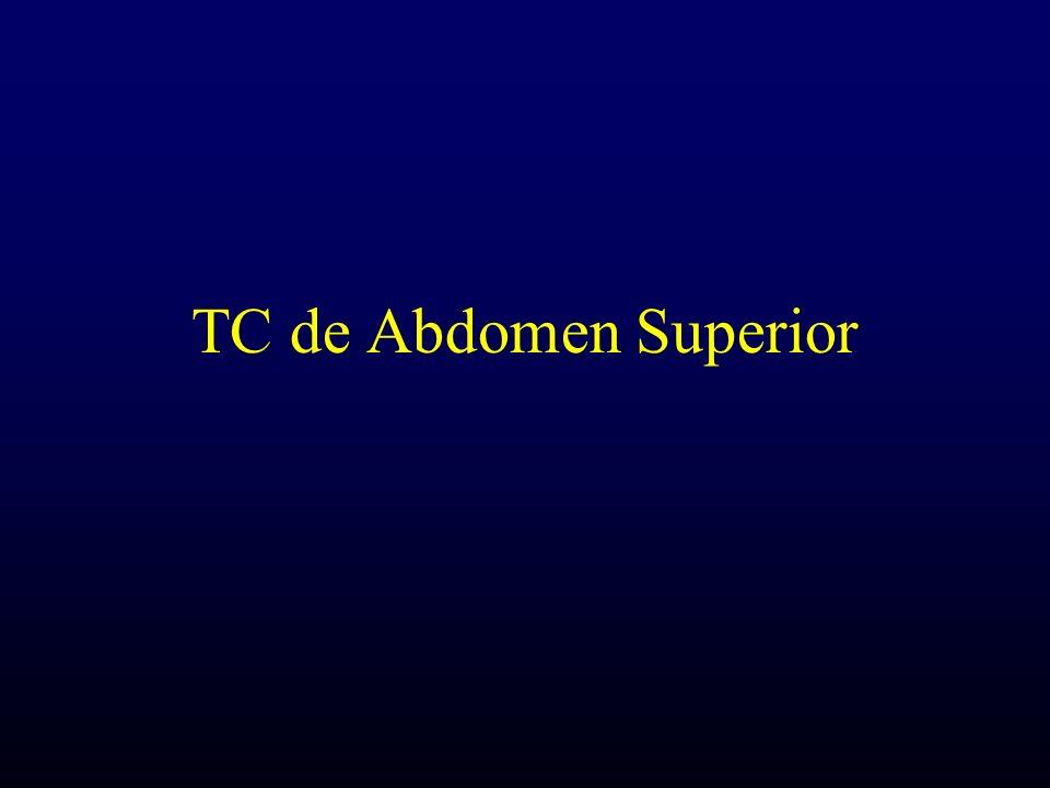 TC de Abdomen Superior