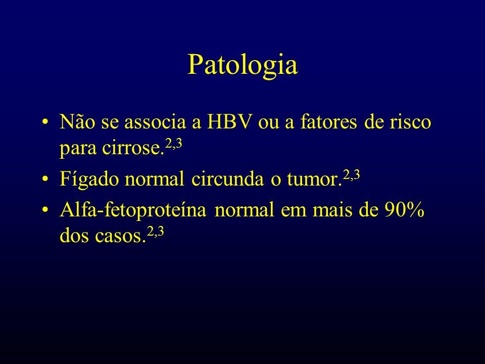 Patologia Não se associa a HBV ou a fatores de risco para cirrose.2,3