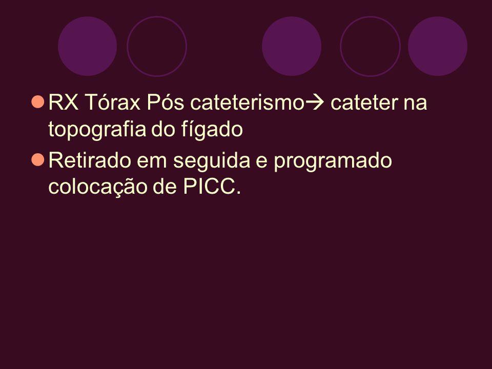 RX Tórax Pós cateterismo cateter na topografia do fígado