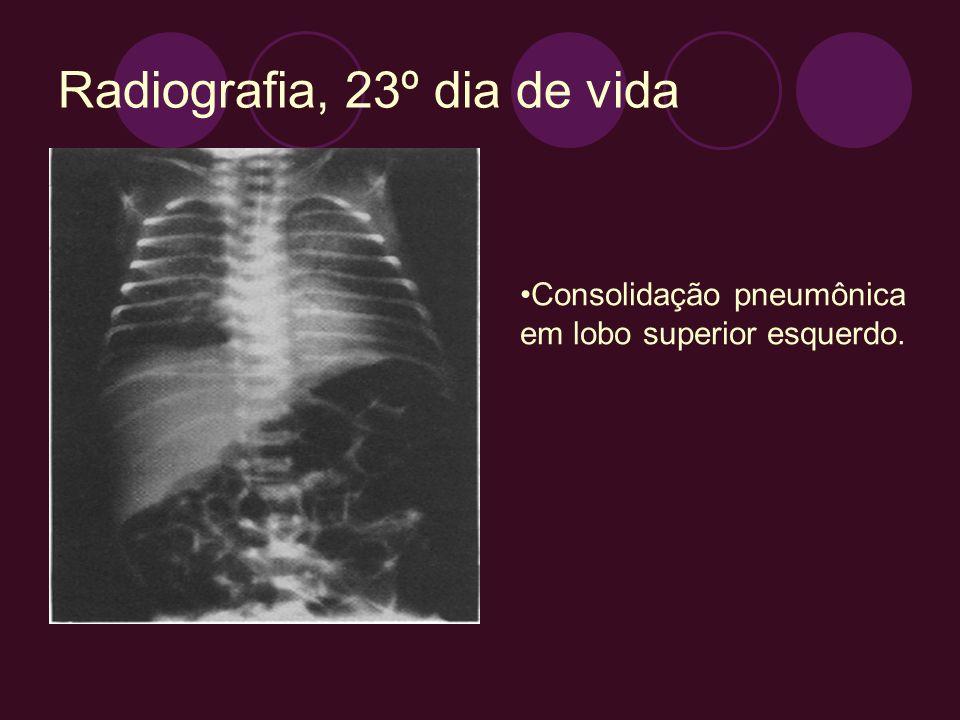 Radiografia, 23º dia de vida