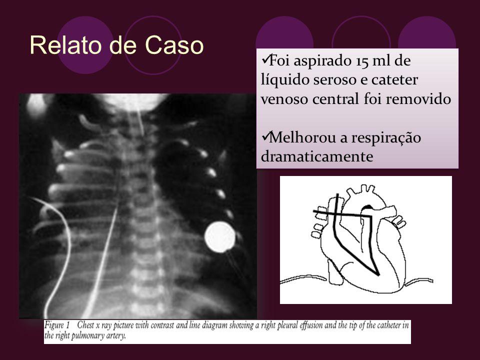 Relato de Caso Foi aspirado 15 ml de líquido seroso e cateter venoso central foi removido.