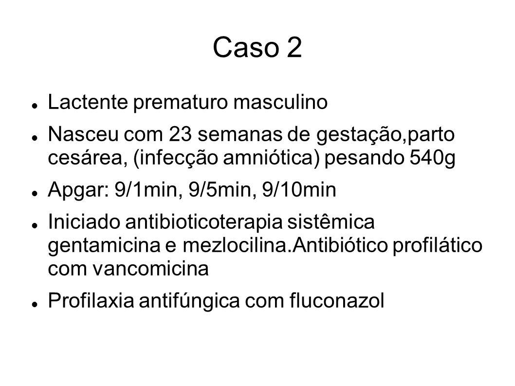 Caso 2 Lactente prematuro masculino