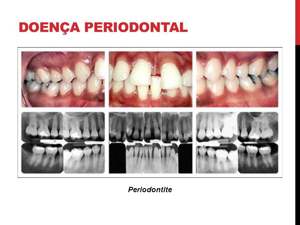 DOENÇA PERIODONTAL Periodontite