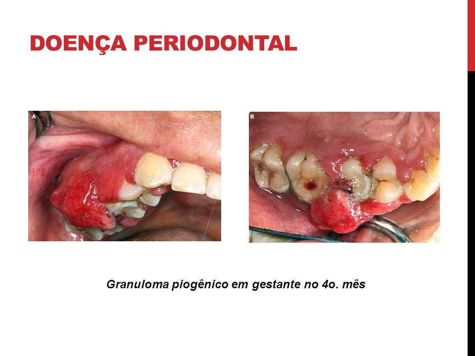 Granuloma piogênico em gestante no 4o. mês