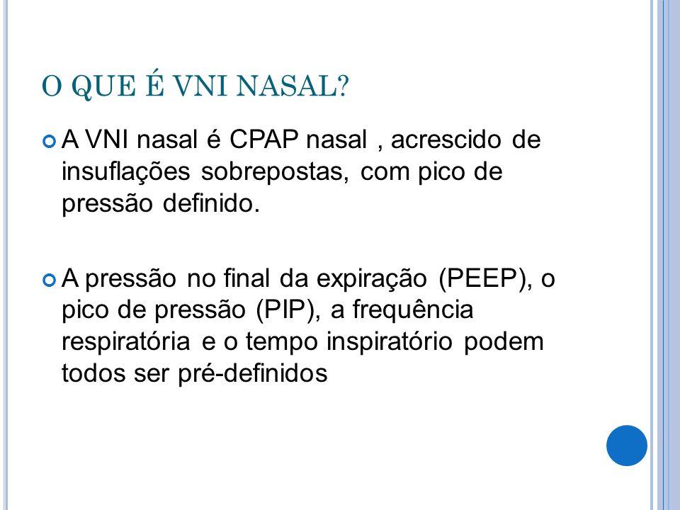 O QUE É VNI NASAL A VNI nasal é CPAP nasal , acrescido de insuflações sobrepostas, com pico de pressão definido.