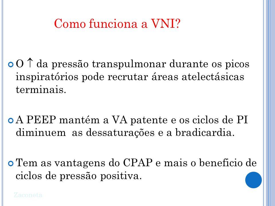 Como funciona a VNI O  da pressão transpulmonar durante os picos inspiratórios pode recrutar áreas atelectásicas terminais.