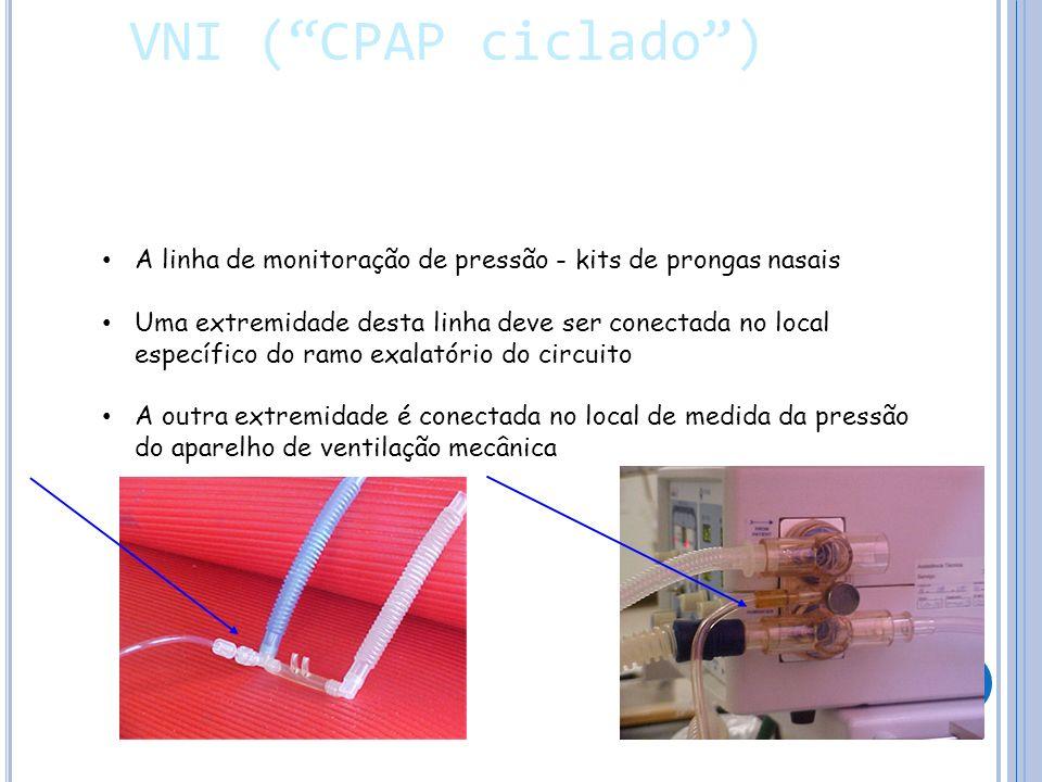 VNI ( CPAP ciclado ) A linha de monitoração de pressão - kits de prongas nasais.