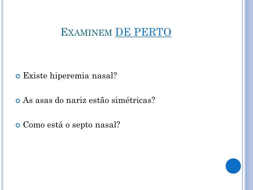 Examinem DE PERTO Existe hiperemia nasal