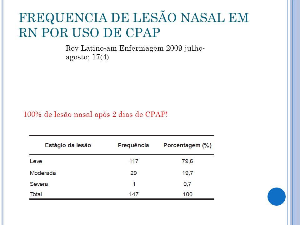 FREQUENCIA DE LESÃO NASAL EM RN POR USO DE CPAP