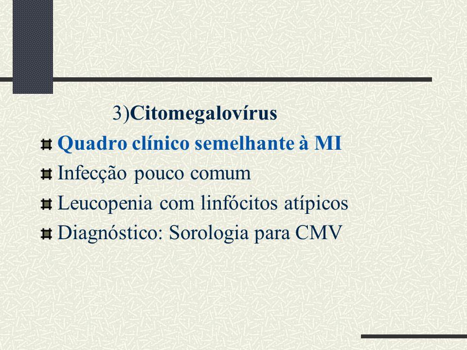 3)Citomegalovírus Quadro clínico semelhante à MI. Infecção pouco comum. Leucopenia com linfócitos atípicos.