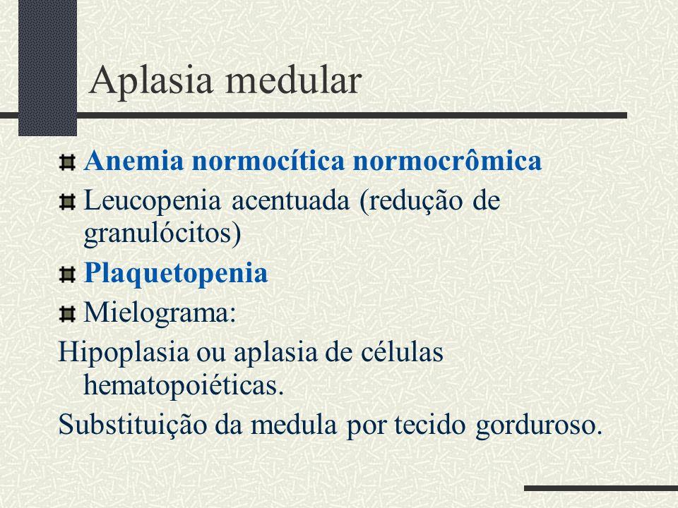 Aplasia medular Anemia normocítica normocrômica