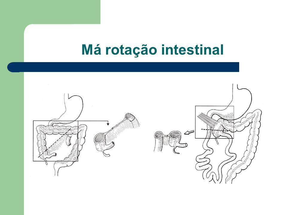 Má rotação intestinal