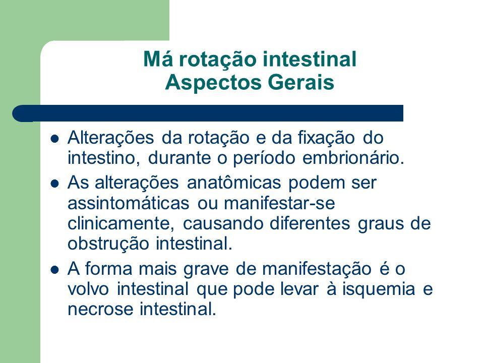 Má rotação intestinal Aspectos Gerais