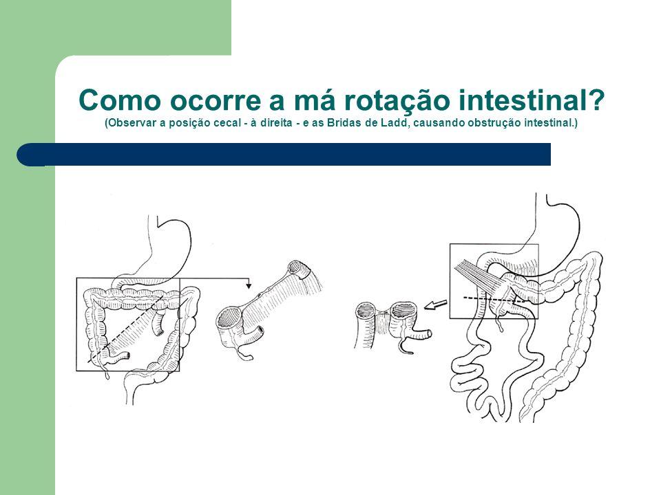 Como ocorre a má rotação intestinal