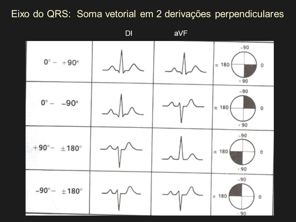 Eixo do QRS: Soma vetorial em 2 derivações perpendiculares