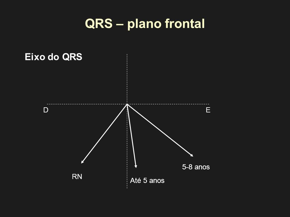 QRS – plano frontal Eixo do QRS D E 5-8 anos RN Até 5 anos