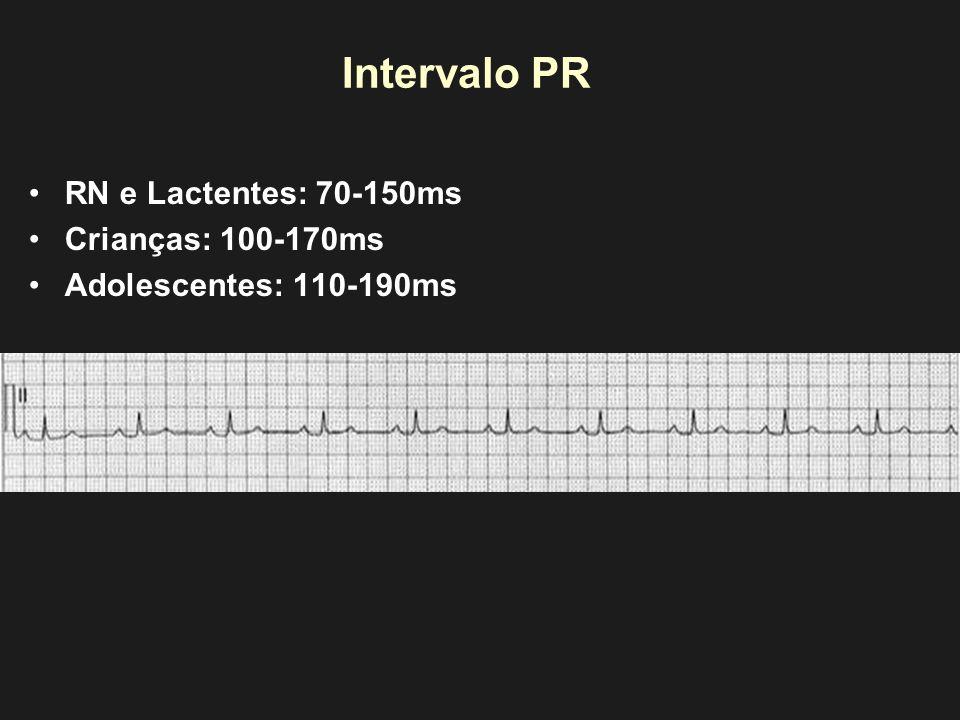 Intervalo PR RN e Lactentes: 70-150ms Crianças: 100-170ms