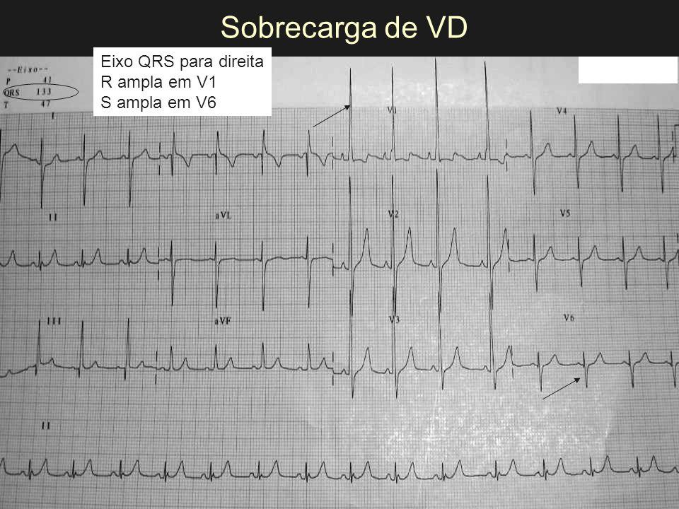 Sobrecarga de VD Eixo QRS para direita R ampla em V1 S ampla em V6