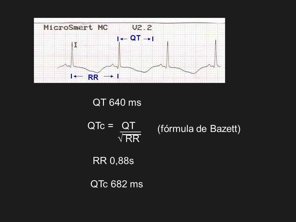 QT RR QT 640 ms QTc = QT √ RR (fórmula de Bazett) RR 0,88s QTc 682 ms