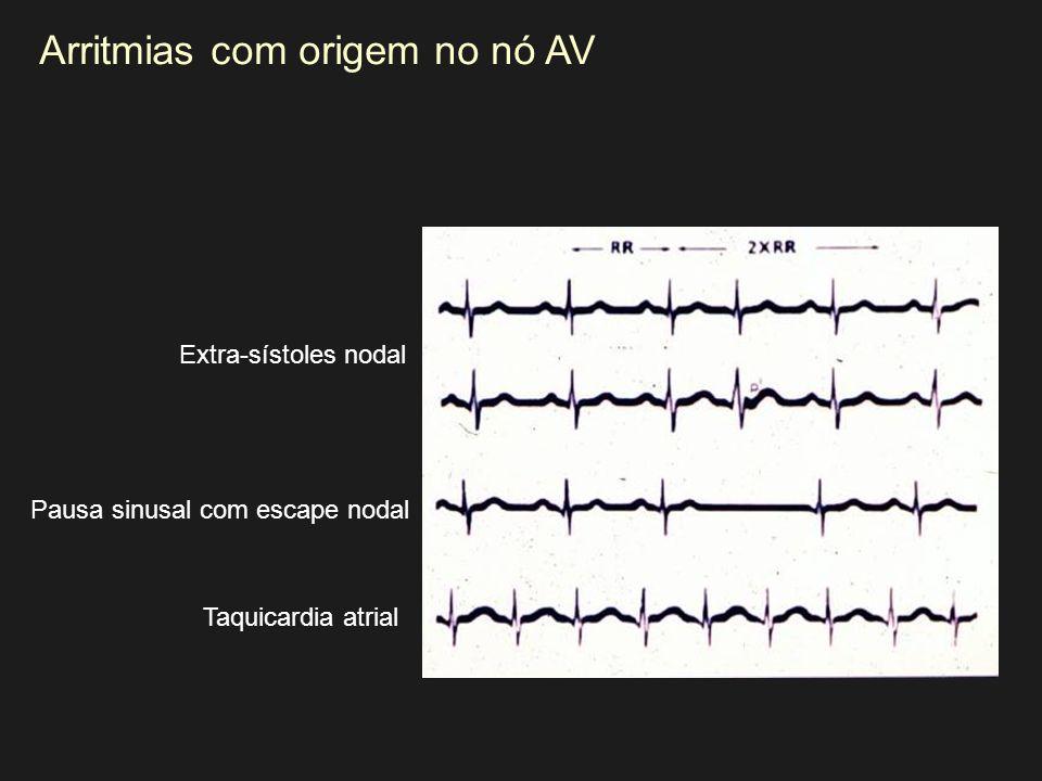 Arritmias com origem no nó AV