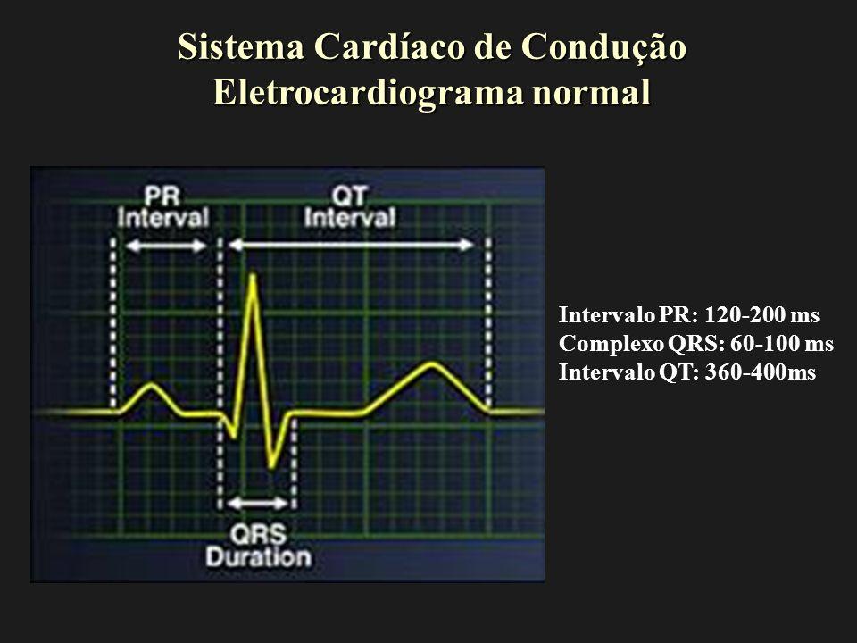 Sistema Cardíaco de Condução Eletrocardiograma normal