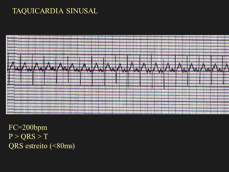 TAQUICARDIA SINUSAL FC=200bpm P > QRS > T QRS estreito (<80ms)