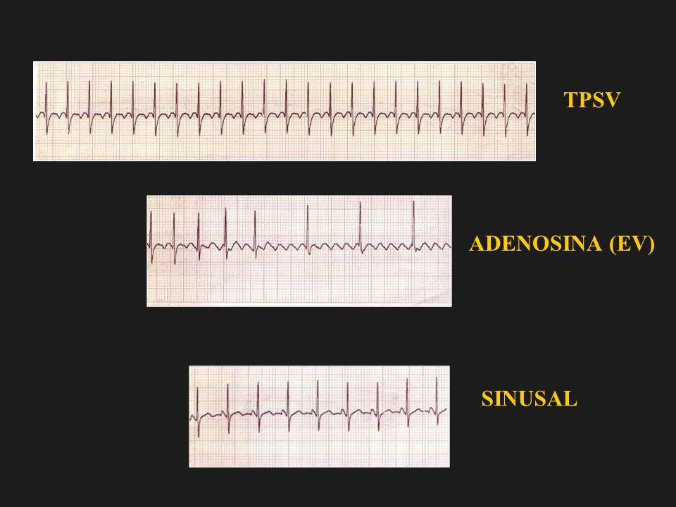 TPSV ADENOSINA (EV) SINUSAL