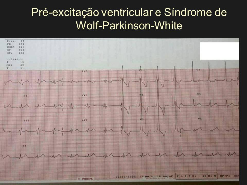 Pré-excitação ventricular e Síndrome de Wolf-Parkinson-White