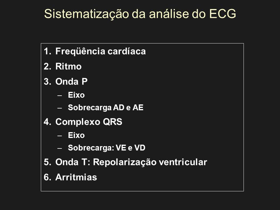 Sistematização da análise do ECG