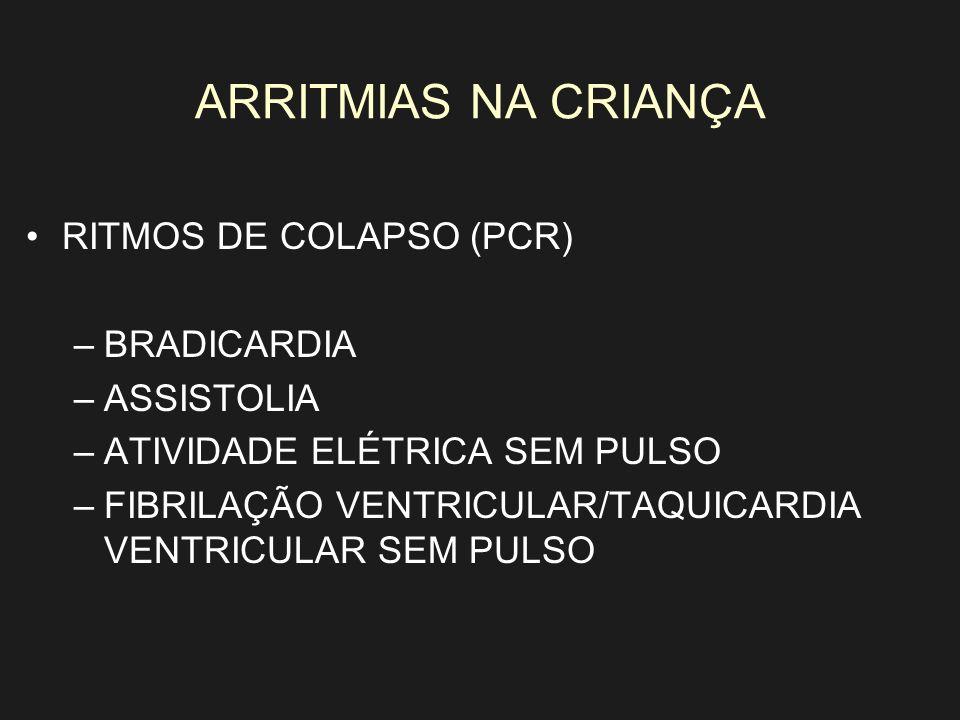 ARRITMIAS NA CRIANÇA RITMOS DE COLAPSO (PCR) BRADICARDIA ASSISTOLIA
