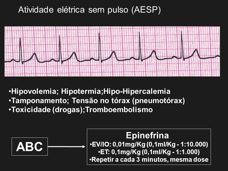 ABC Atividade elétrica sem pulso (AESP) Epinefrina