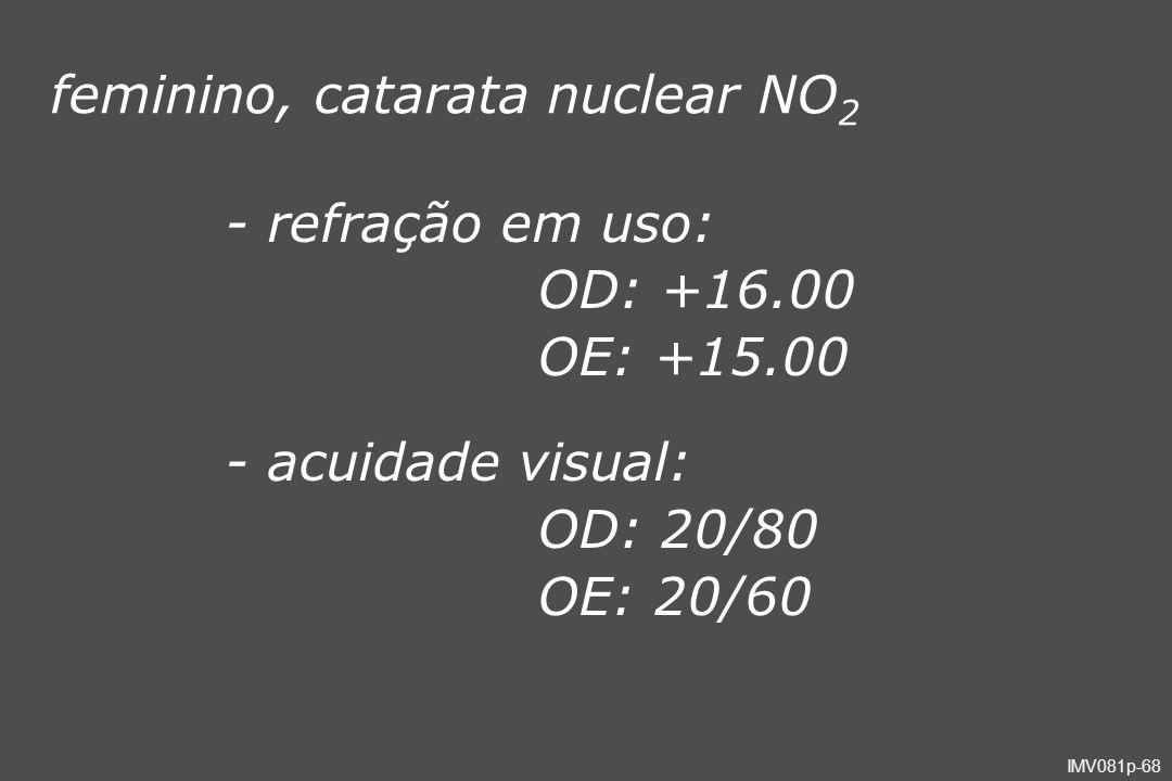 feminino, catarata nuclear NO2
